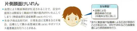 神経 麻痺 原因 顔面