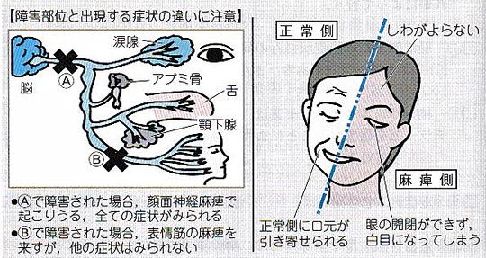 ギラン バレー 症候群 症状
