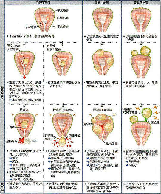 筋腫 注射 子宮
